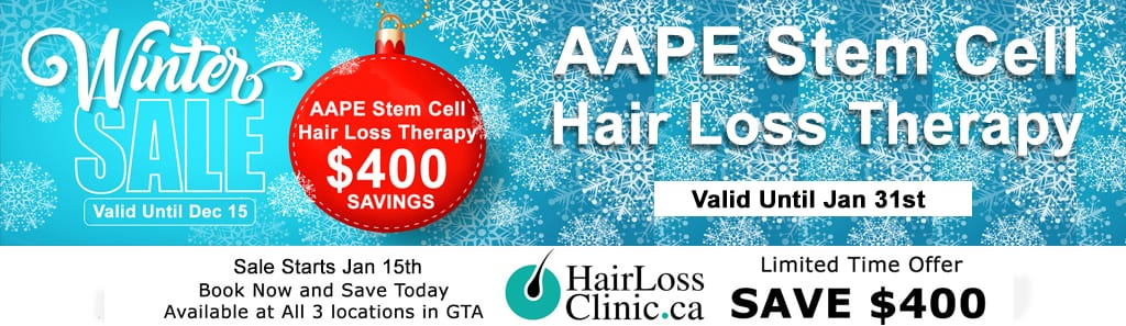 hair loss clinic toronto and richmond hill