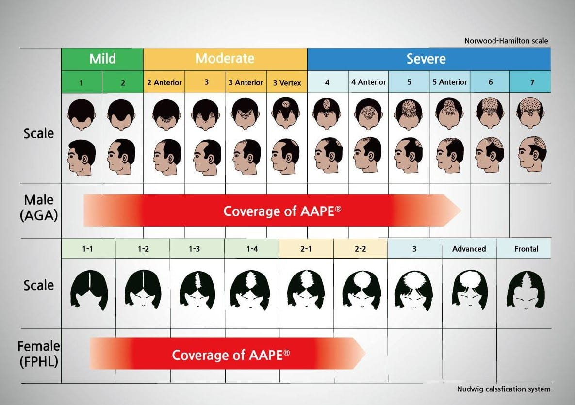 AAPE for androgenetic hair loss