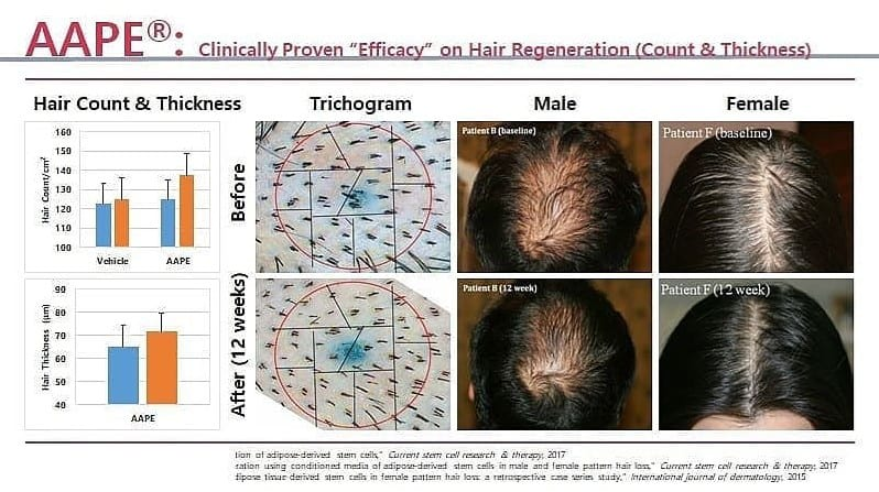 AAPE Hair Regeneration Count & Thickness