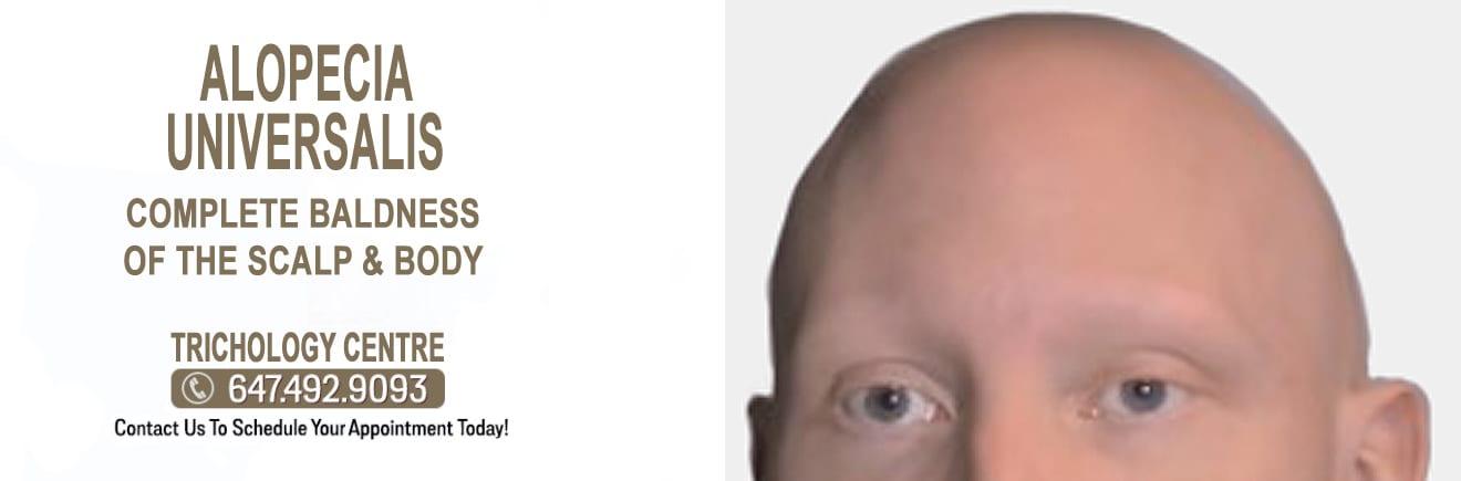 What is Alopecia Universalis?