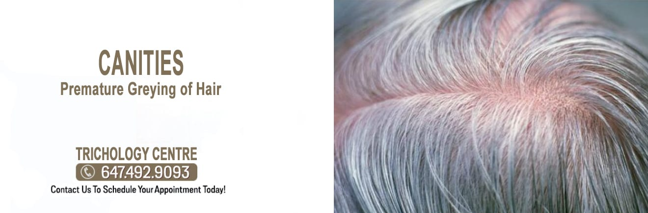 Canities Gray Hair