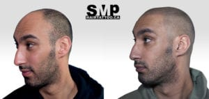 Scalp Micropigmentation before and after photo