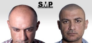 SMP before and after photo