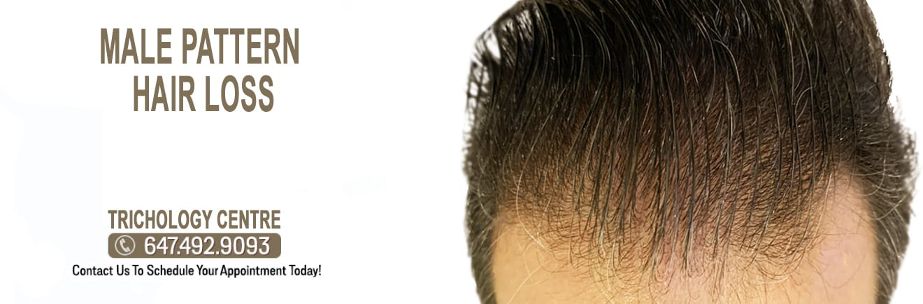What is Male Pattern Hair Loss?