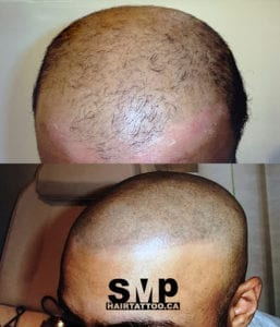 SMP before and after 1