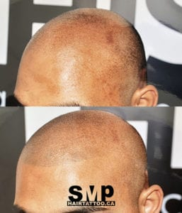 SMP Before and After 10