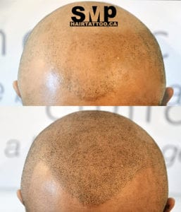 SMP Before and After 12