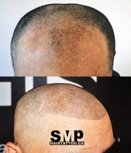SMP before and after 2