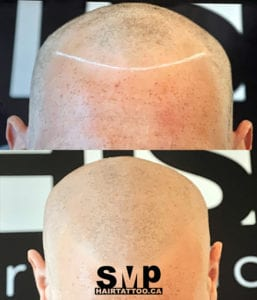 SMP before and after 3