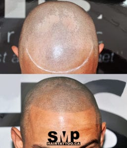 SMP before and after 6