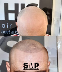 SMP before and after 8