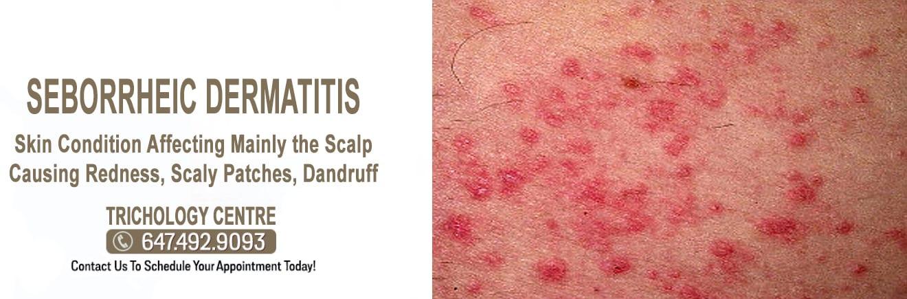What is Seborrheic Dermatitis?