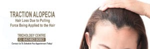What is Traction Alopecia?