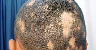female hair loss treatment - ALOPECIA AREATA
