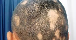 female hair loss treatment - ALOPECIA AREATA