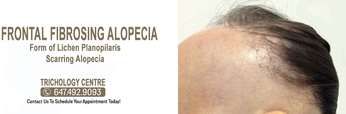 What is Frontal Fibrosing Alopecia?