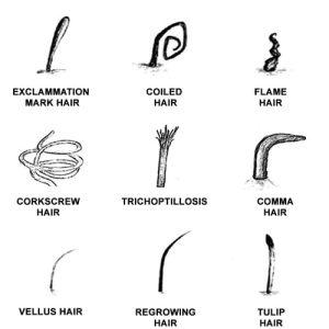 hair shaft abnormalities