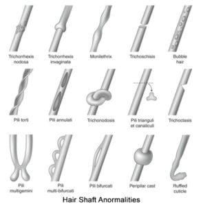 hair-shaft-anormalities