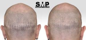 SMP Scar coverage treatment
