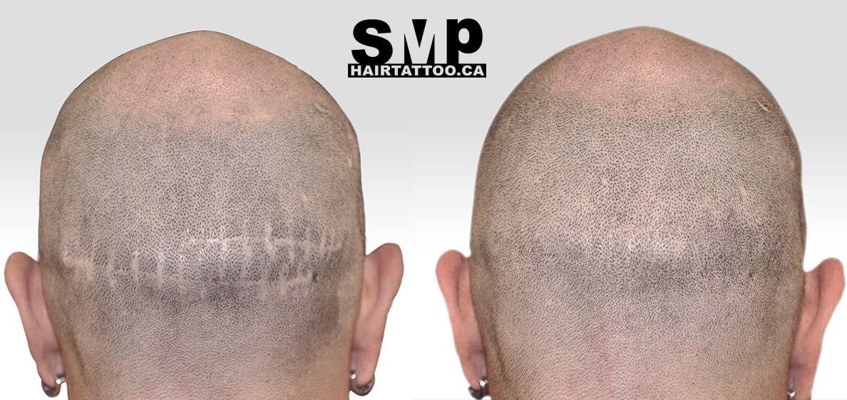 SMP Scar coverage treatment